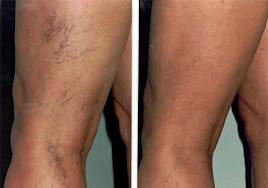 Removal of spider veins