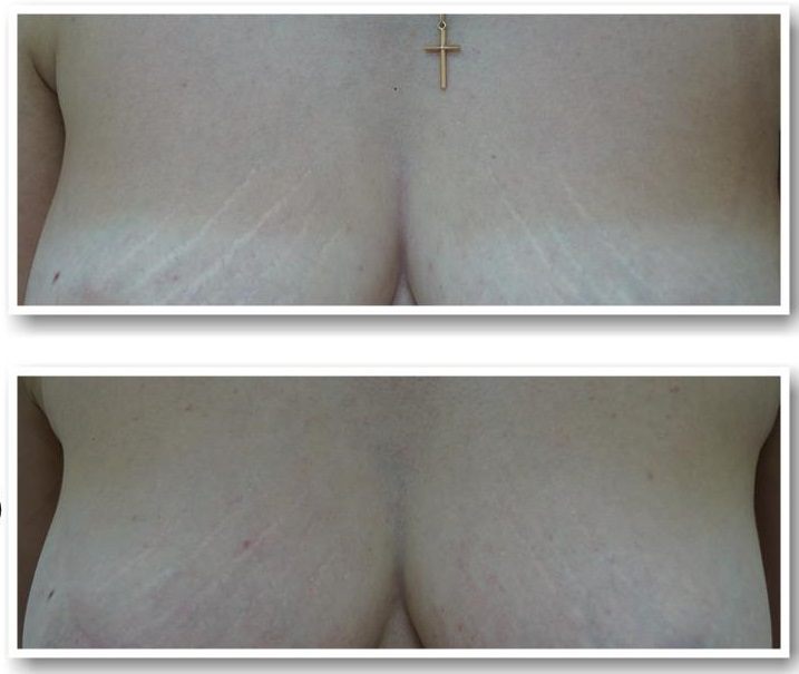 LASER REMOVAL OF STRETCHES (STRIAE)