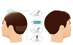 пересадка волос киев голд лазер 2