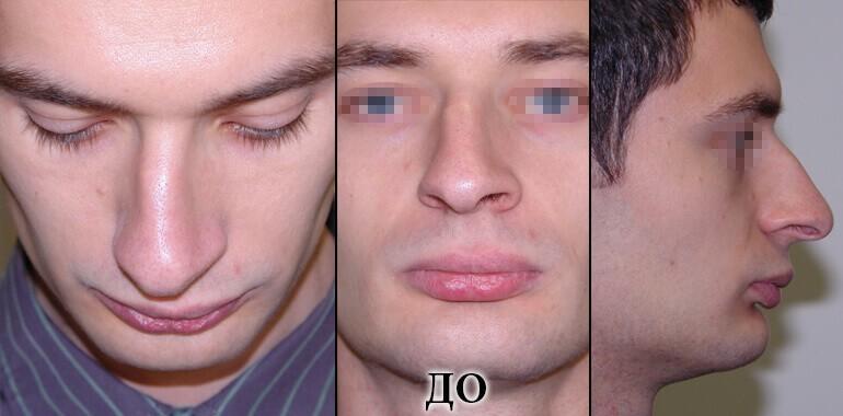 Ринопластика - фото до и после №8