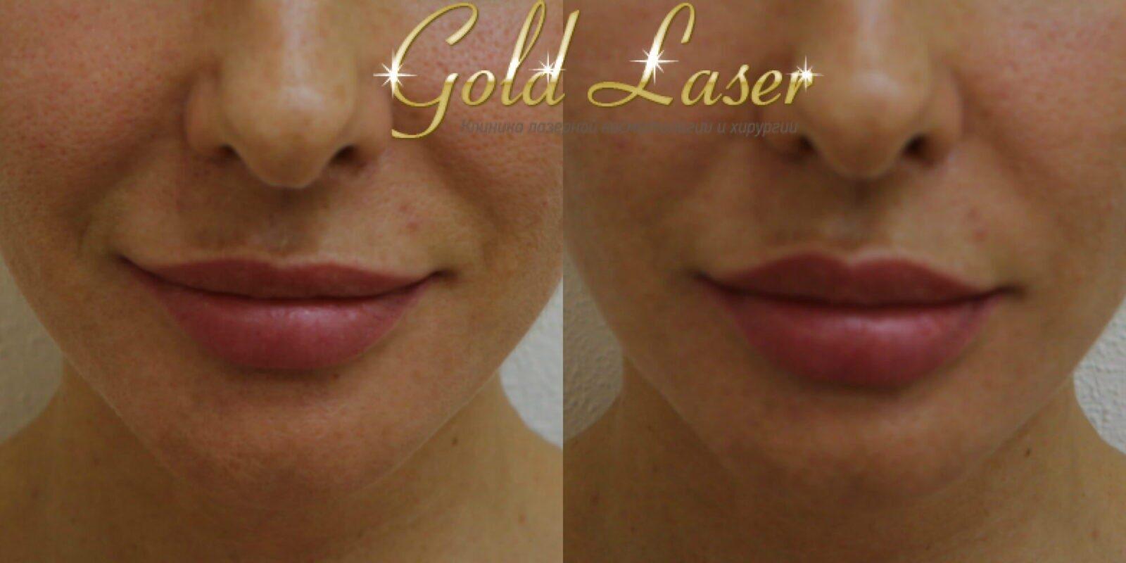 Контурная пластика губ в Gold Laser Киев фото 16