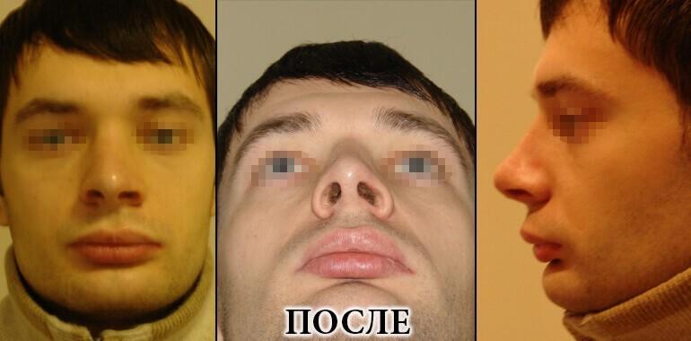 Ринопластика - фото до и после №9