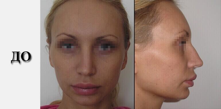 Ринопластика - фото до и после №7