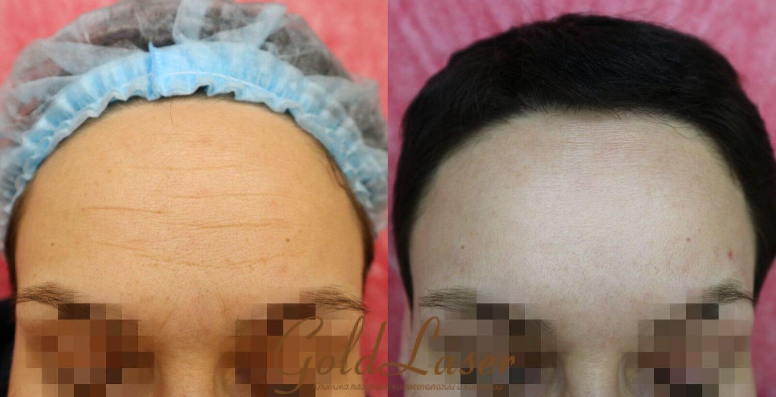 Удаление морщин фото до и после №9