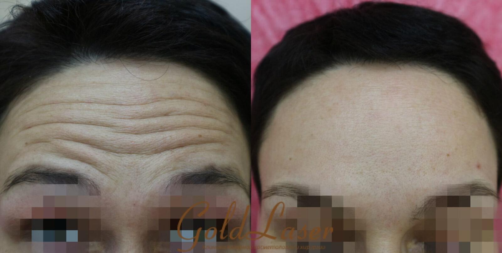 Удаление морщин фото до и после №7