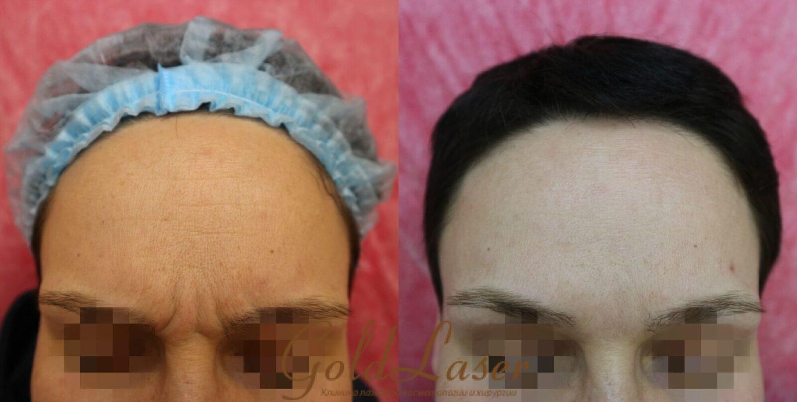 Удаление морщин фото до и после №8