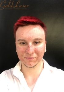 Лазерная шлифовка лица - SMAXEL Therapy 5