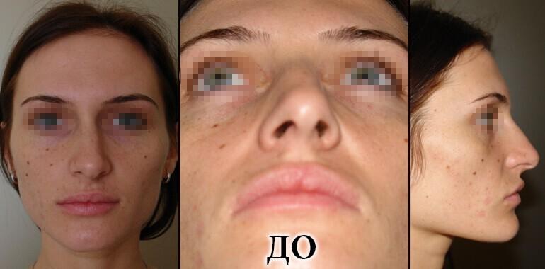 Ринопластика - фото до и после №5