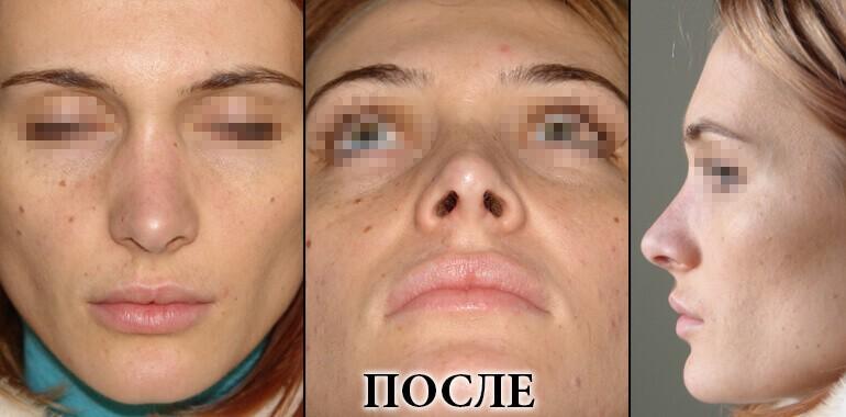 Ринопластика - фото до и после №6