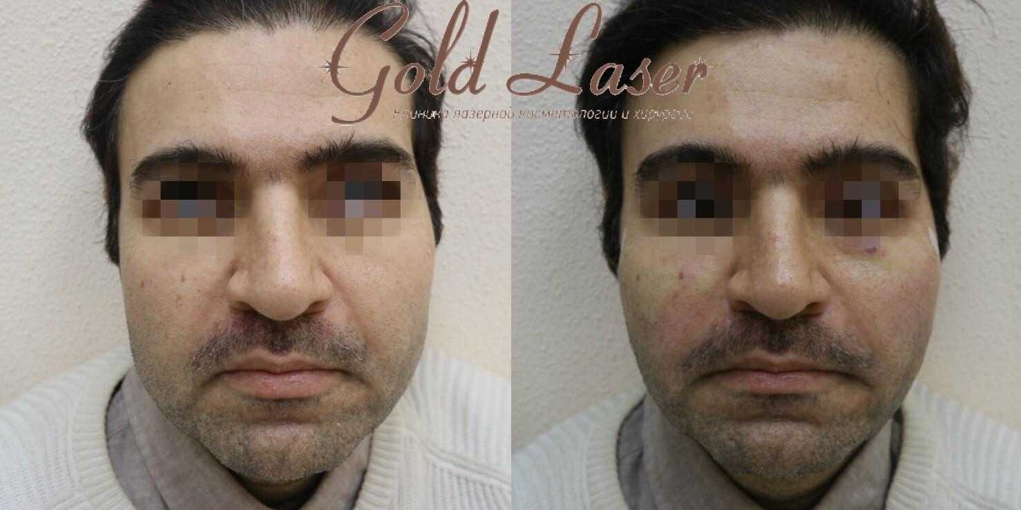 Подтяжка лица мезонитями киев - фото 4