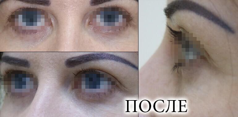 Фото до и после лазерной блефаропластики, изображение 7