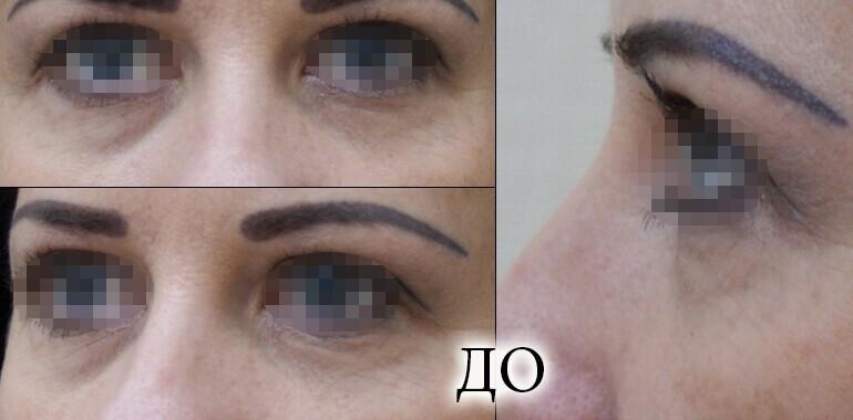 Фото до и после лазерной блефаропластики, фото 6
