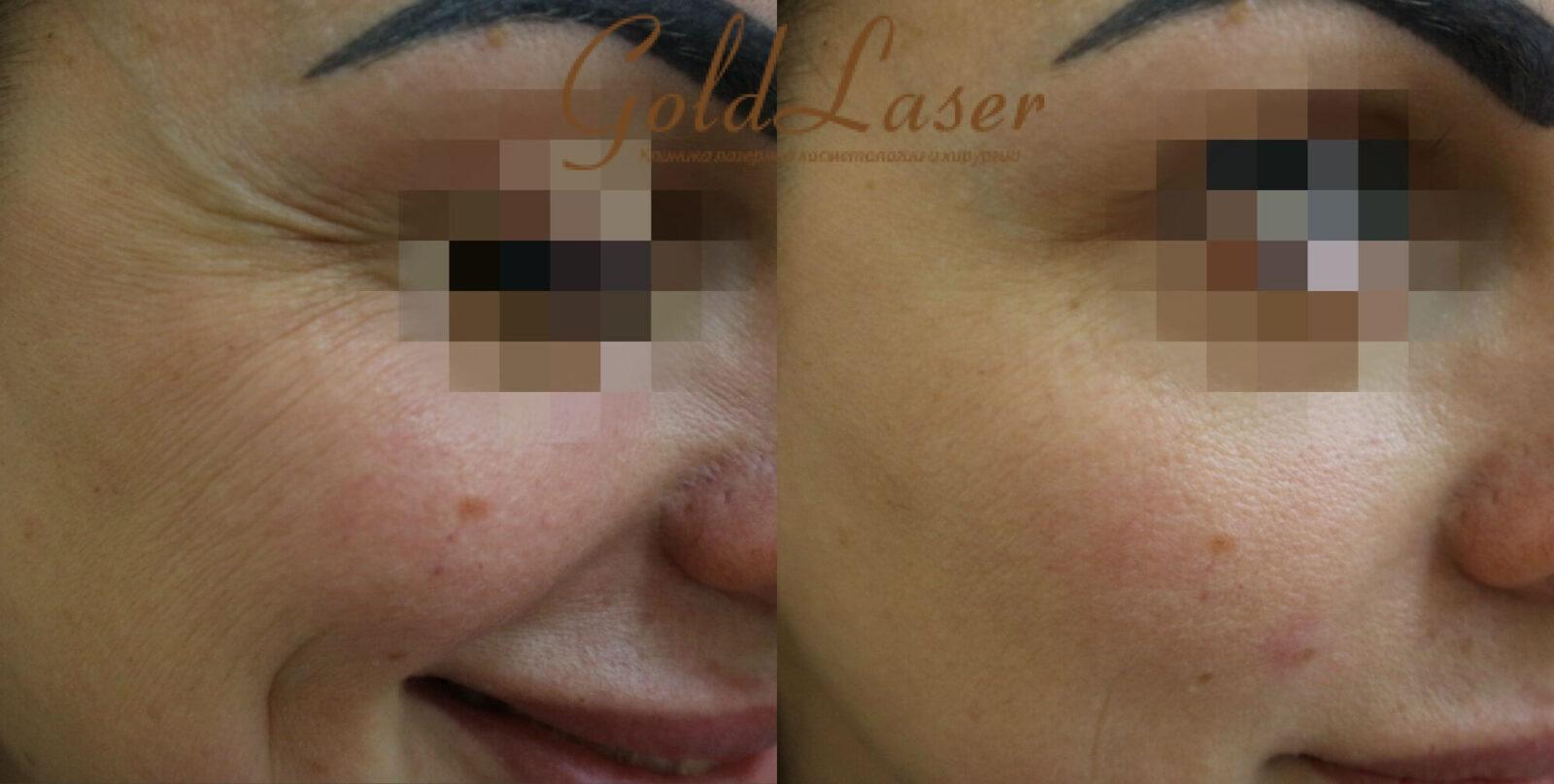 Фото до и после удаления морщин