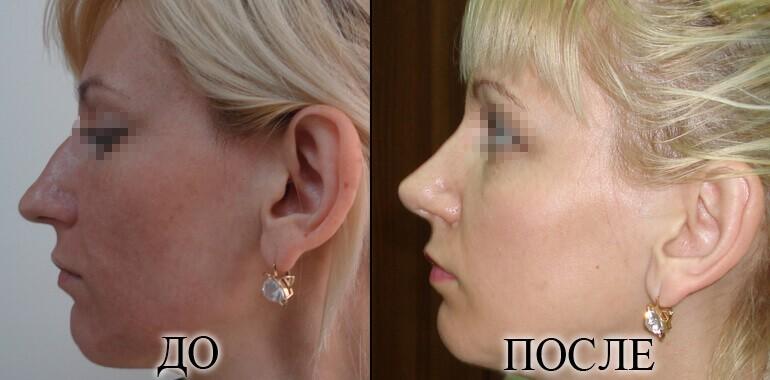 Ринопластика - фото до и после №10