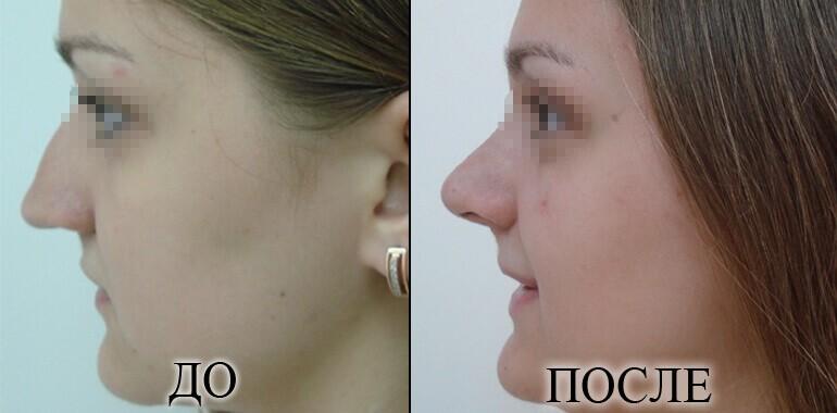 Ринопластика - фото до и после №11