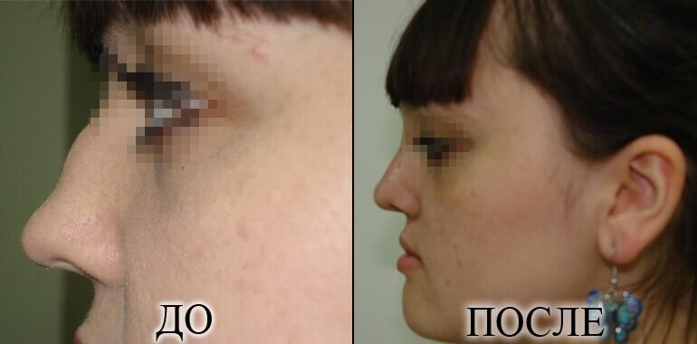 Ринопластика - фото до и после №12