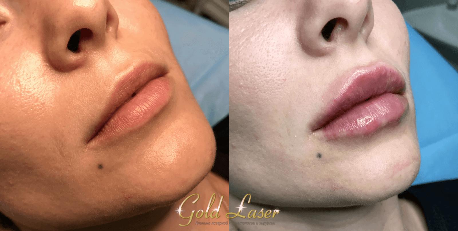 увеличение губ киев 2
