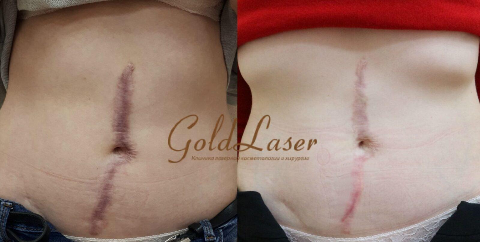 Лазерное удаление шрама в Киеве
