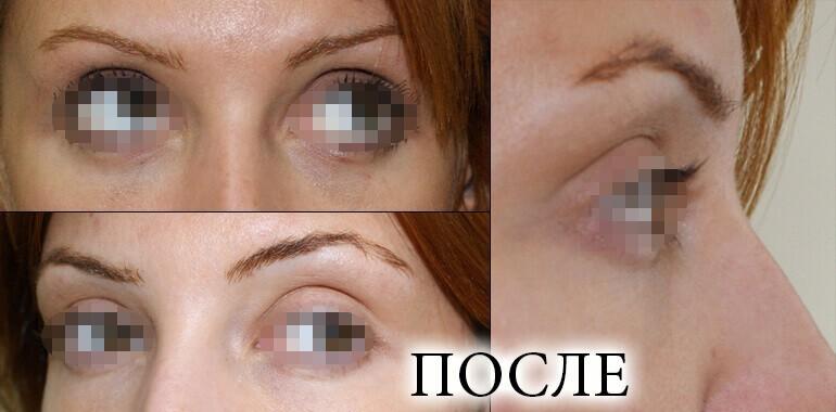 Фото до и после лазерной блефаропластики, фото 5