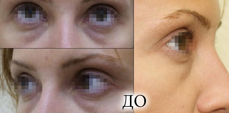До и после лазерной блефаропластики, фото 4