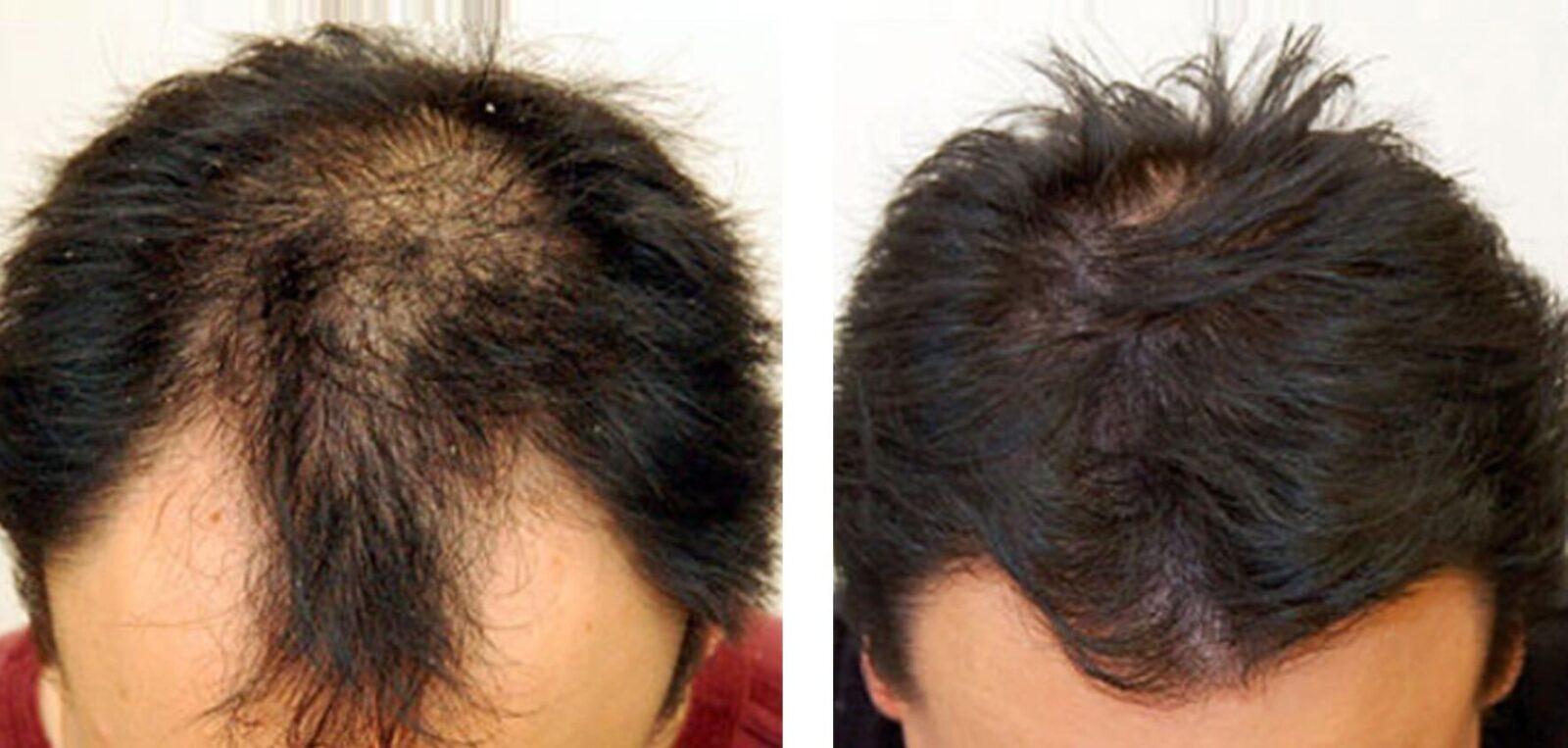 Фото До и После пересадки волос - фото 6