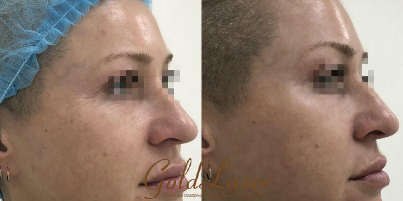 Фото до и после удаления морщин вокруг глаз