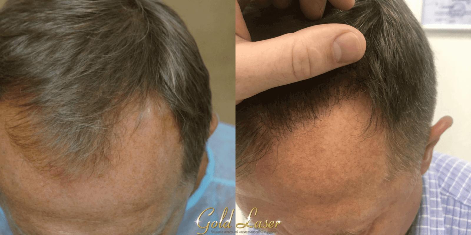 Пересадка волос методами FUE и HFE киев 6