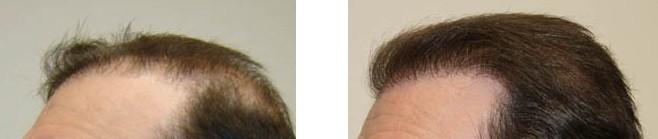 Фото До и После пересадки волос - фото 7
