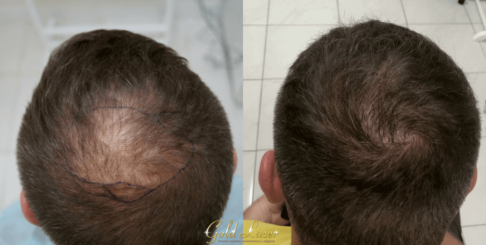 Пересадка волос методами FUE и HFE киев 2