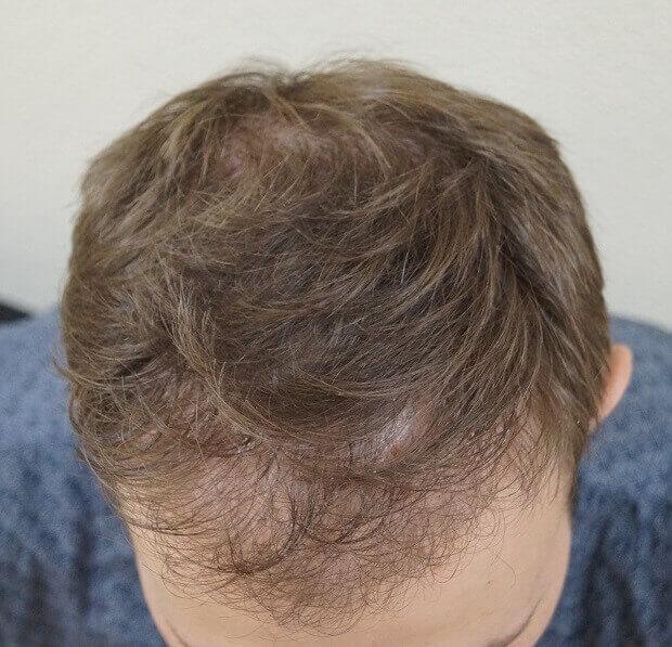 Фото до и после пересадки волос № 2