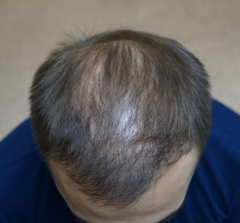 Фото до и после пересадки волос № 4