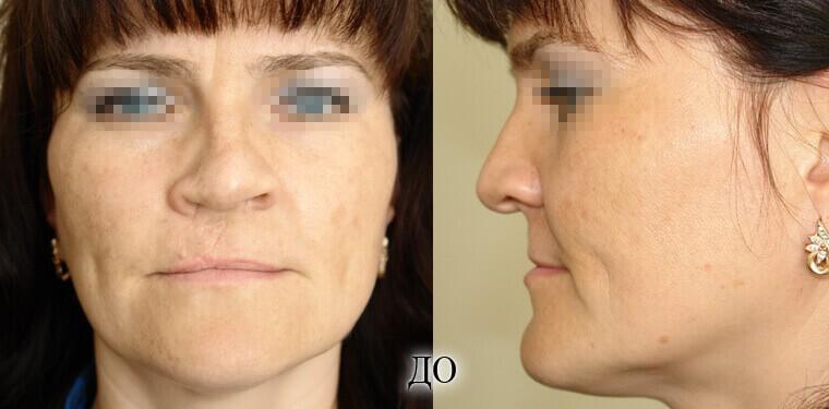 Реконструкция носа - фото до и после 1