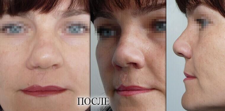 Реконструкция носа - фото 2