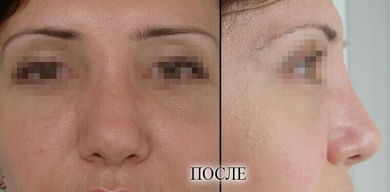 Ринопластика - фото до и после №2