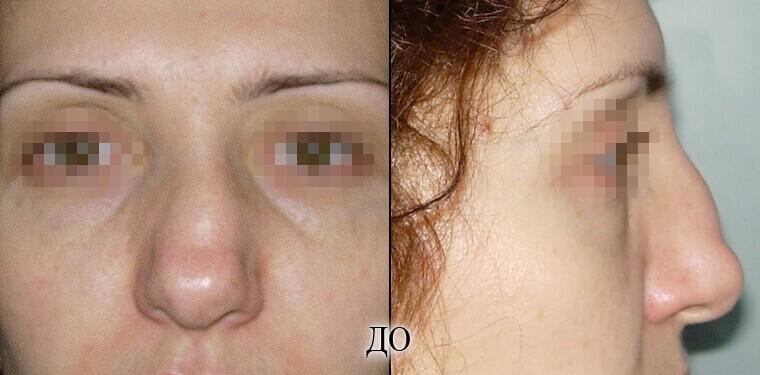Ринопластика - фото до и после №1
