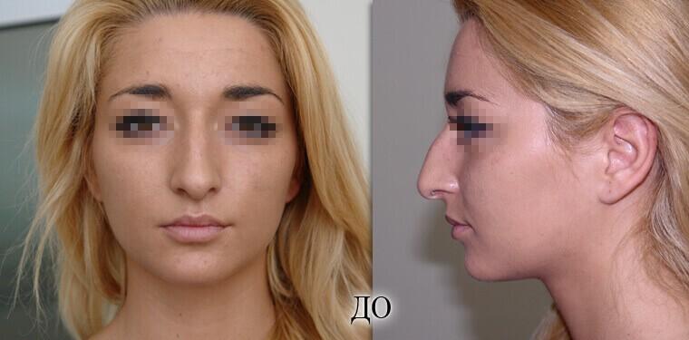 Ринопластика - фото до и после №3