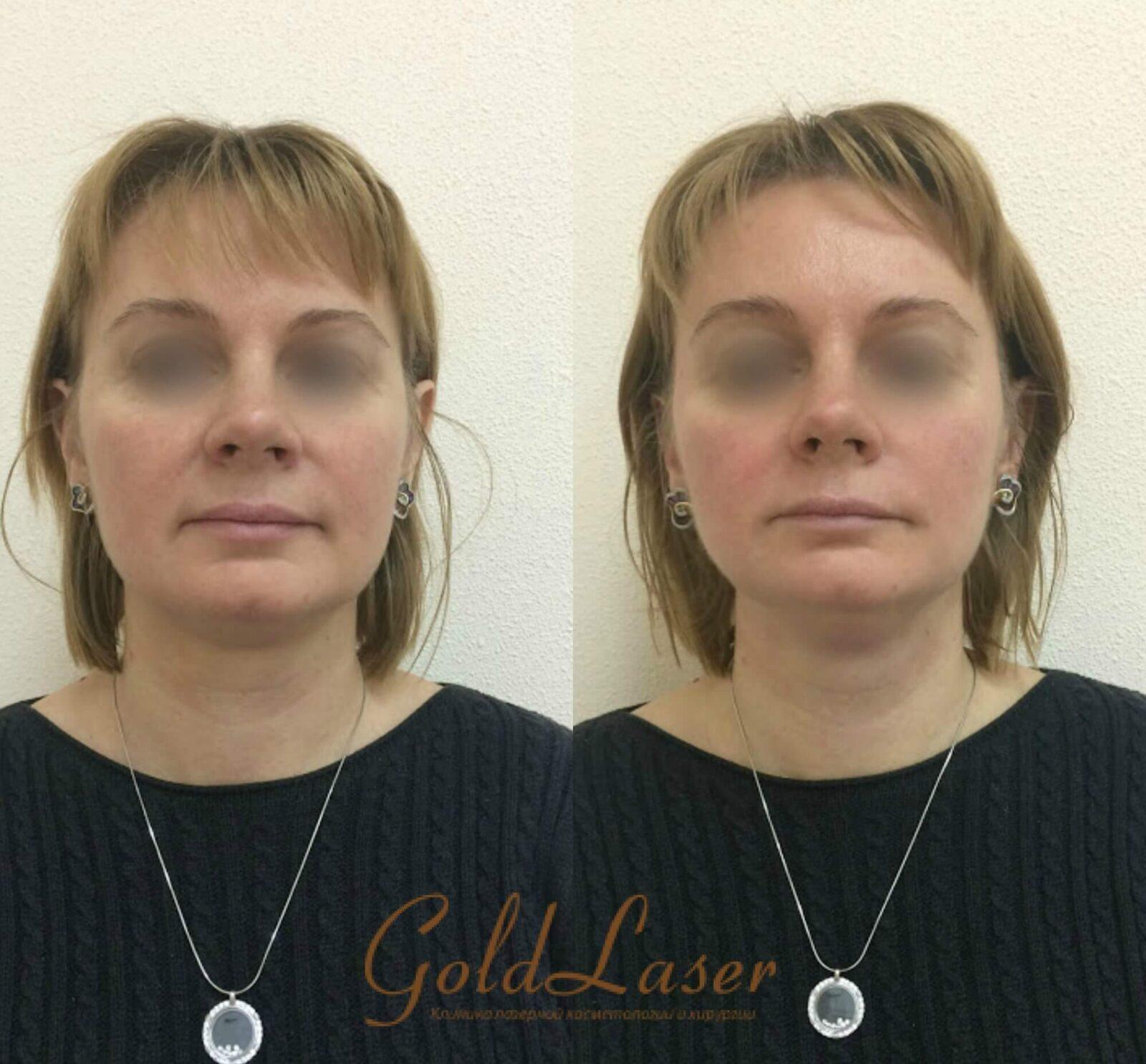 Фото до и после SMAS лифтинга в Gold Laser