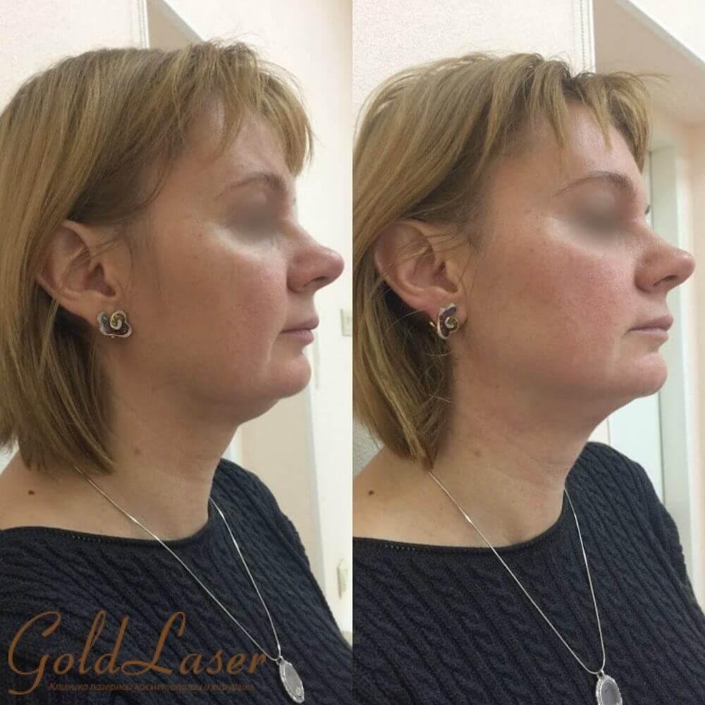 Фото до и после SMAS лифтинга в Gold Laser - изображение 2