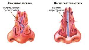 Искривление носовой перегородки - фото