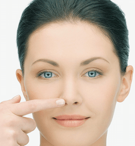 Ринопластика ноздрей 2