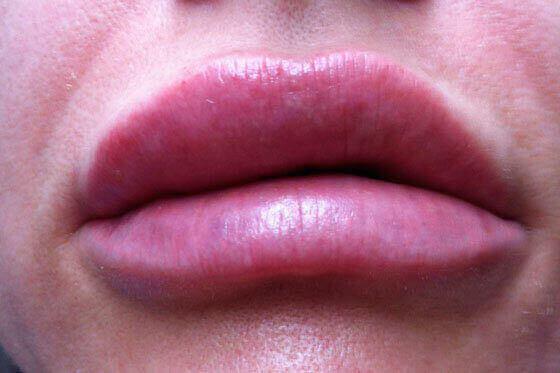 Увеличение губ: противопоказания и побочные эффекты