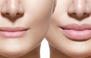 Инъекционное увеличение губ