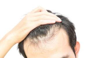 Что такое диффузное выпадение волос: лечение у женщин и мужчин