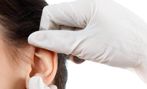 Пластика мочки уха после тоннелей