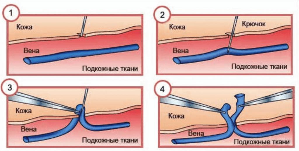 лечение варикоза киев