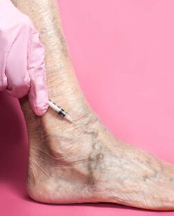 Лечение варикоза (тромбофлебита) и уход после операции в Киеве - изображение