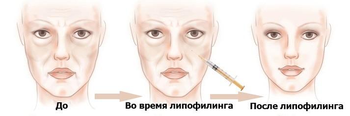 Липофилинг подбородка