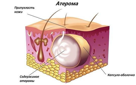 Атерома: изображение