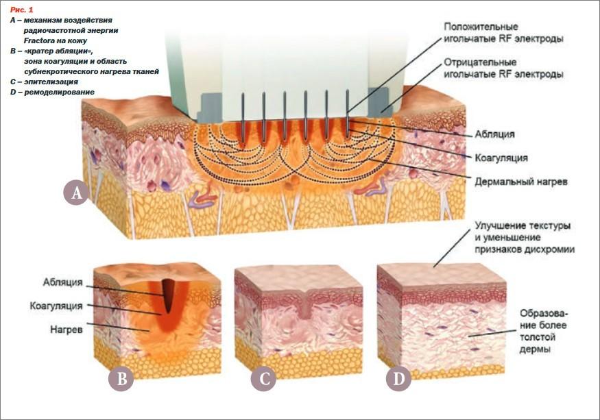Воздействие РФ лифтинга на кожу